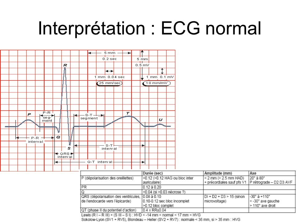 Interprétation : ECG normal
