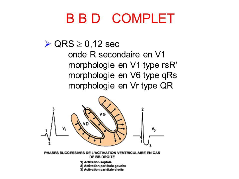 B B D COMPLET  QRS  0,12 sec onde R secondaire en V1