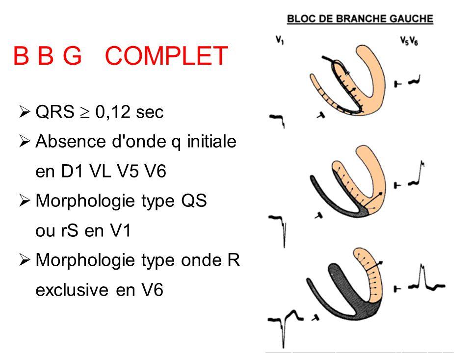 B B G COMPLET QRS  0,12 sec Absence d onde q initiale en D1 VL V5 V6