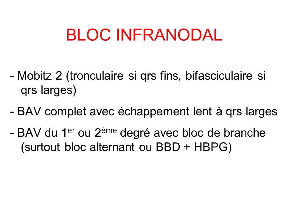 BLOC INFRANODAL - Mobitz 2 (tronculaire si qrs fins, bifasciculaire si qrs larges) - BAV complet avec échappement lent à qrs larges.