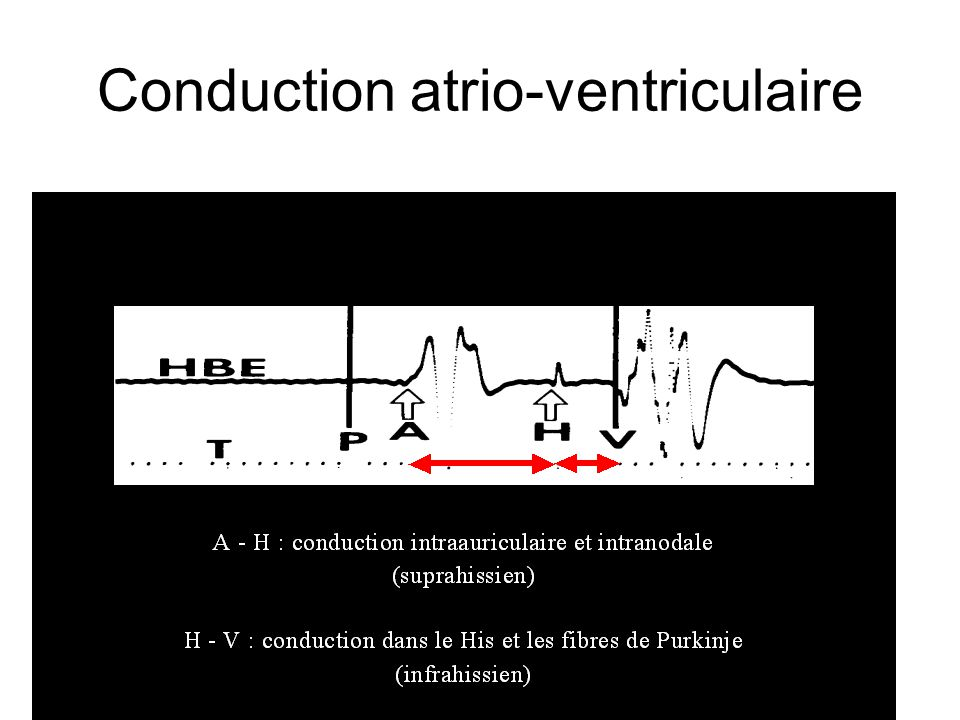 Conduction atrio-ventriculaire