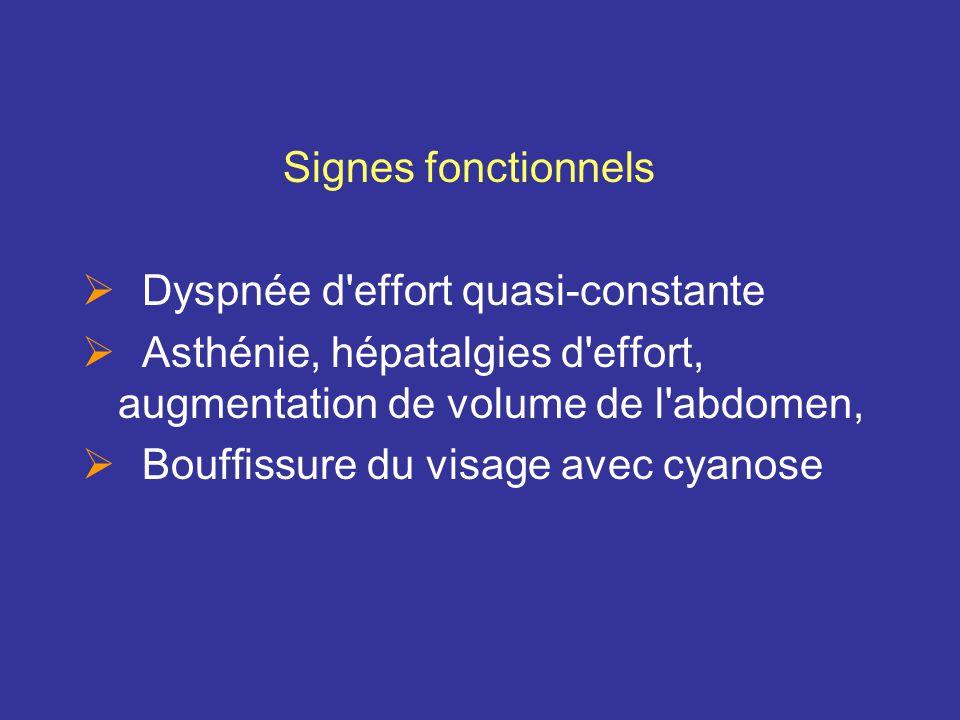 Signes fonctionnels Dyspnée d effort quasi-constante. Asthénie, hépatalgies d effort, augmentation de volume de l abdomen,