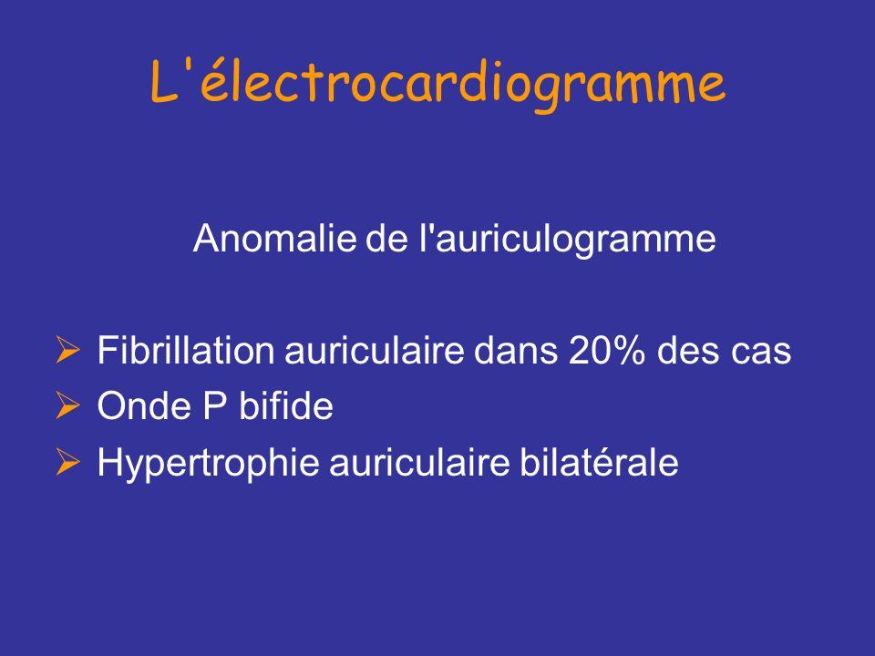 L électrocardiogramme