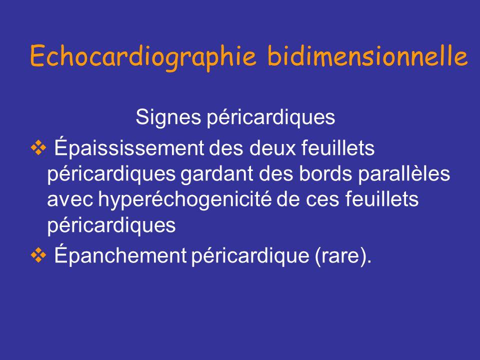 Echocardiographie bidimensionnelle