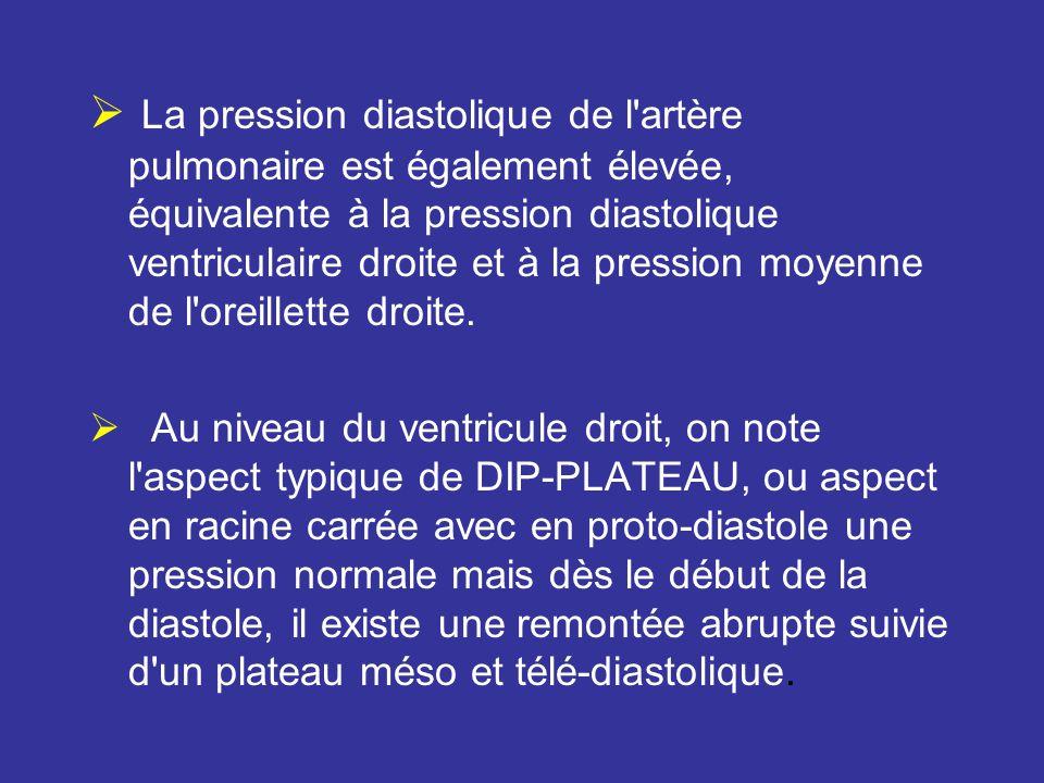 La pression diastolique de l artère pulmonaire est également élevée, équivalente à la pression diastolique ventriculaire droite et à la pression moyenne de l oreillette droite.