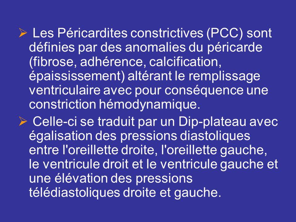 Les Péricardites constrictives (PCC) sont définies par des anomalies du péricarde (fibrose, adhérence, calcification, épaississement) altérant le remplissage ventriculaire avec pour conséquence une constriction hémodynamique.