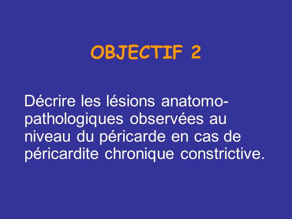 OBJECTIF 2 Décrire les lésions anatomo-pathologiques observées au niveau du péricarde en cas de péricardite chronique constrictive.