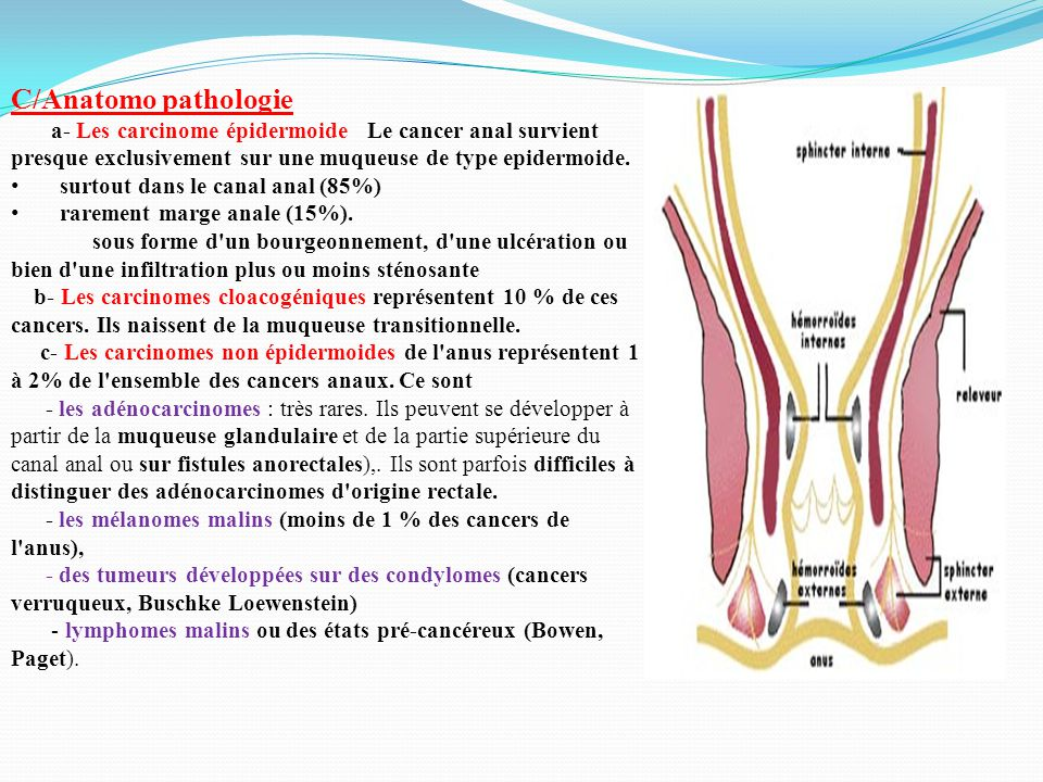 C/Anatomo pathologie a- Les carcinome épidermoide Le cancer anal survient presque exclusivement sur une muqueuse de type epidermoide.