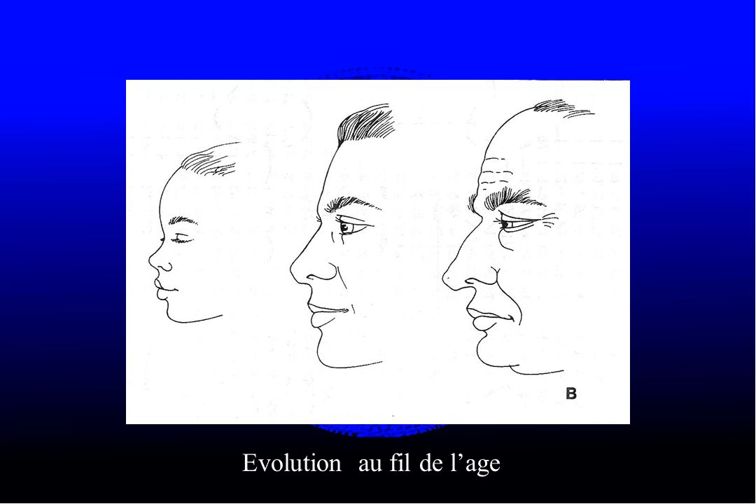 Evolution au fil de l'age