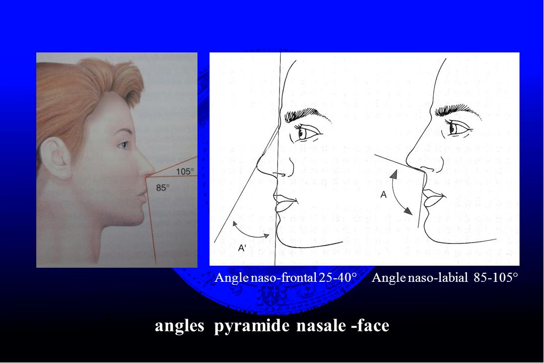 angles pyramide nasale -face