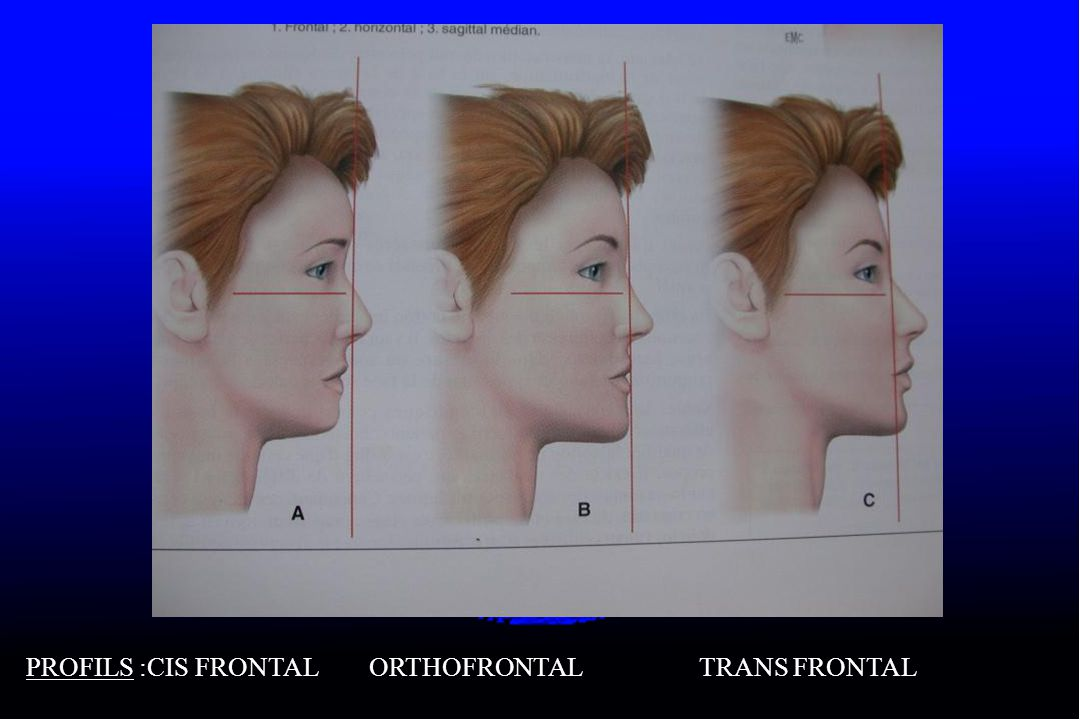 PROFILS :CIS FRONTAL ORTHOFRONTAL TRANS FRONTAL