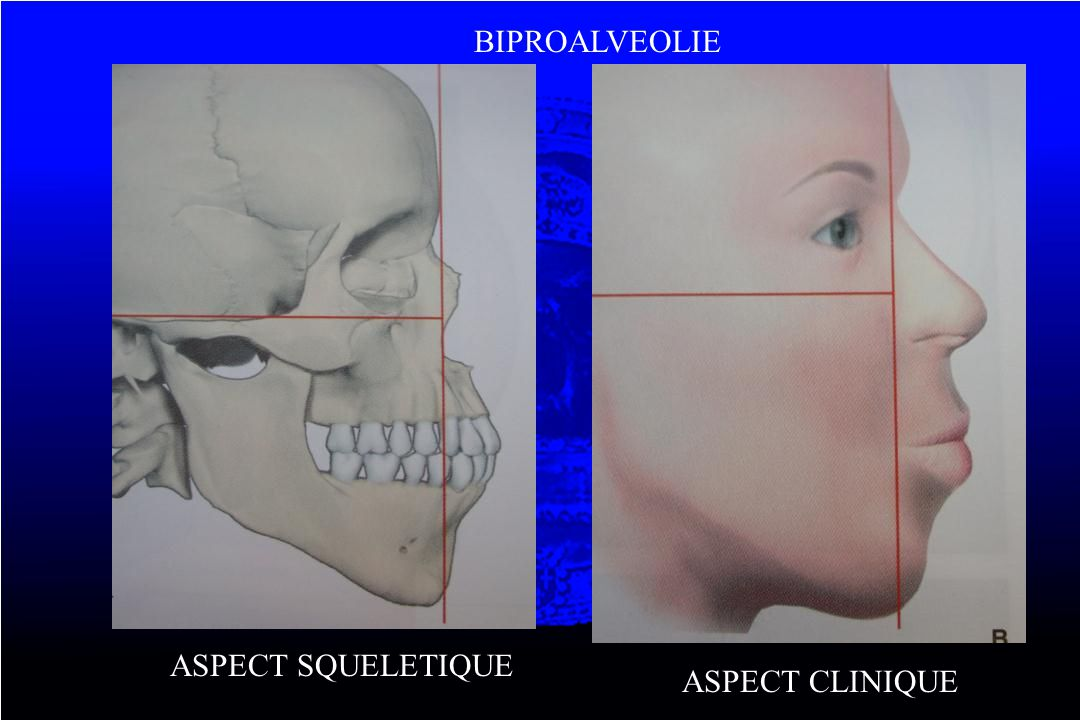 BIPROALVEOLIE ASPECT SQUELETIQUE ASPECT CLINIQUE