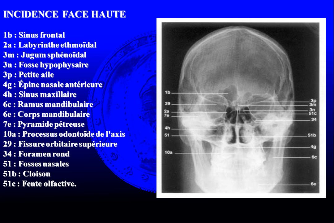 INCIDENCE FACE HAUTE 1b : Sinus frontal 2a : Labyrinthe ethmoïdal
