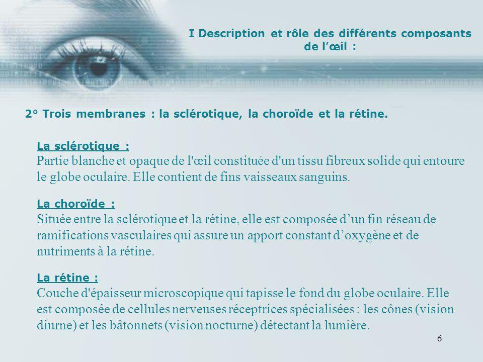 vision blanche et trouble oeil