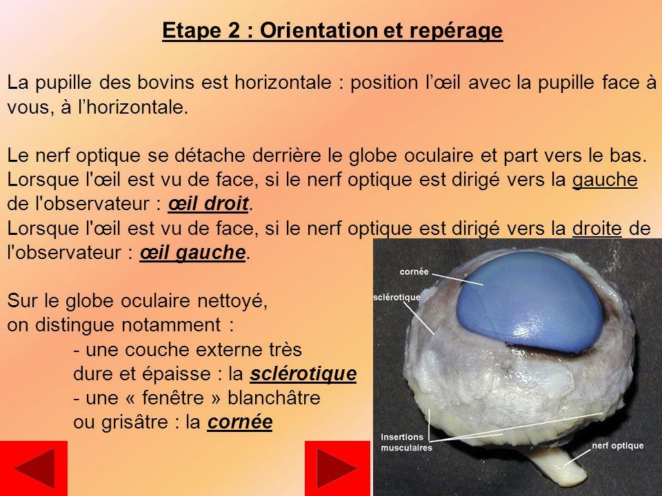 1es l theme 1 representation visuelle du monde ppt video online t l charger - Couche du globe oculaire ...