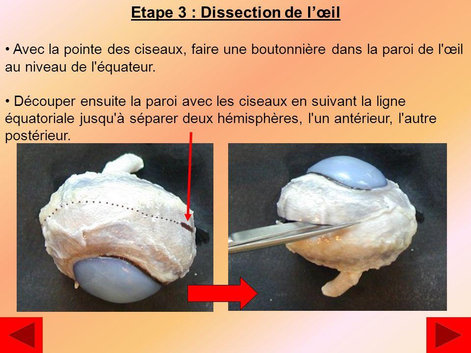 Etape 3 : Dissection de l'œil