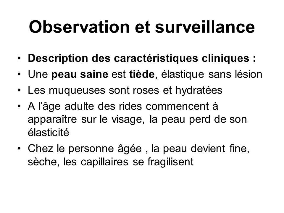Observation et surveillance