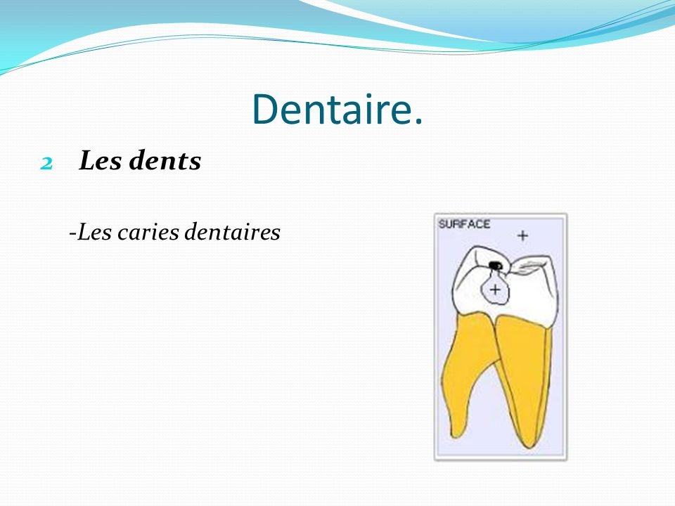 Dentaire. Les dents -Les caries dentaires
