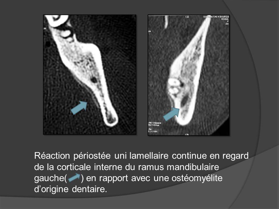 Imagerie des osteites maxillaires a propos de 59 cas a for Fenetre mandibulaire