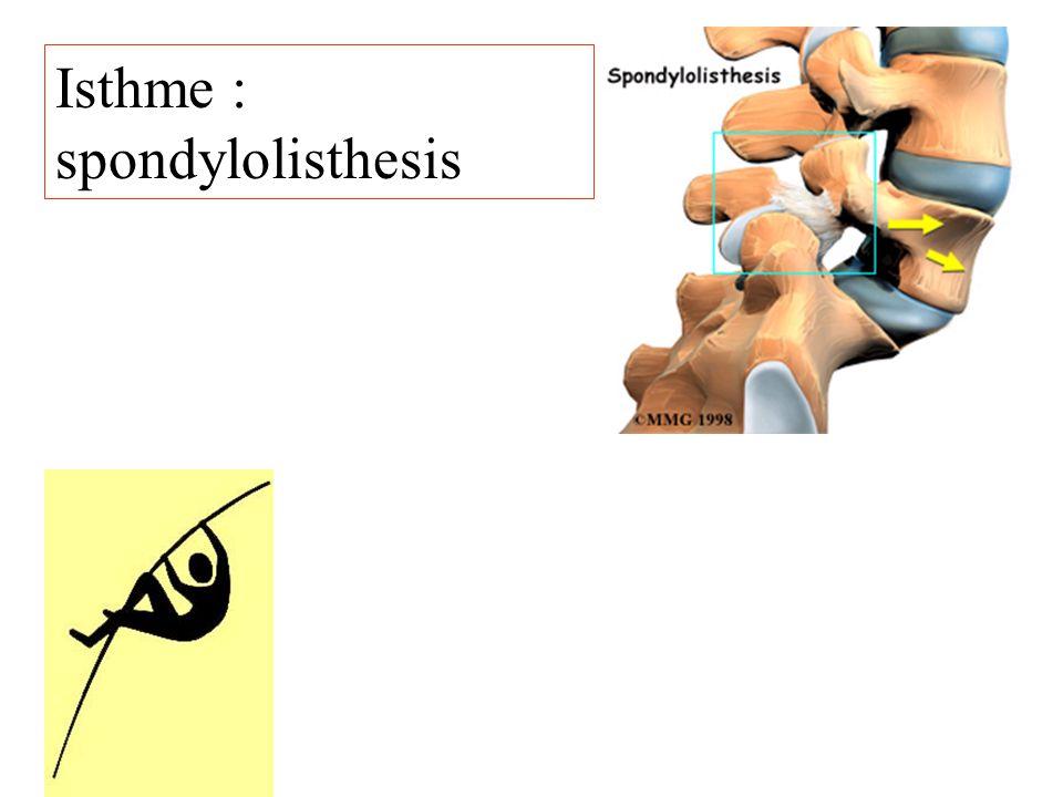 Isthme : spondylolisthesis