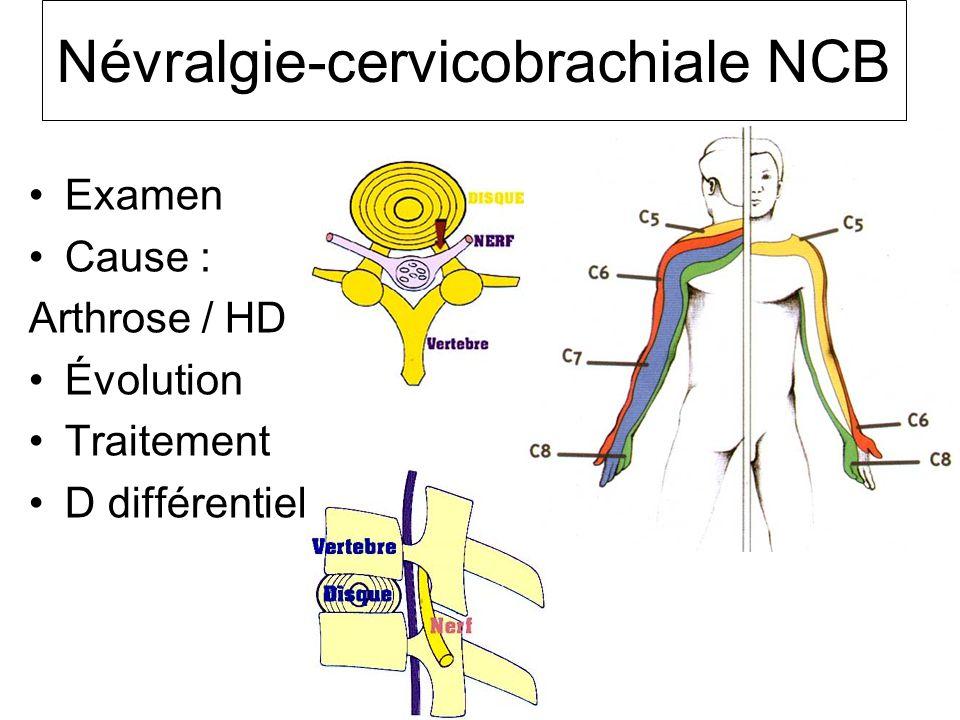 Névralgie-cervicobrachiale NCB