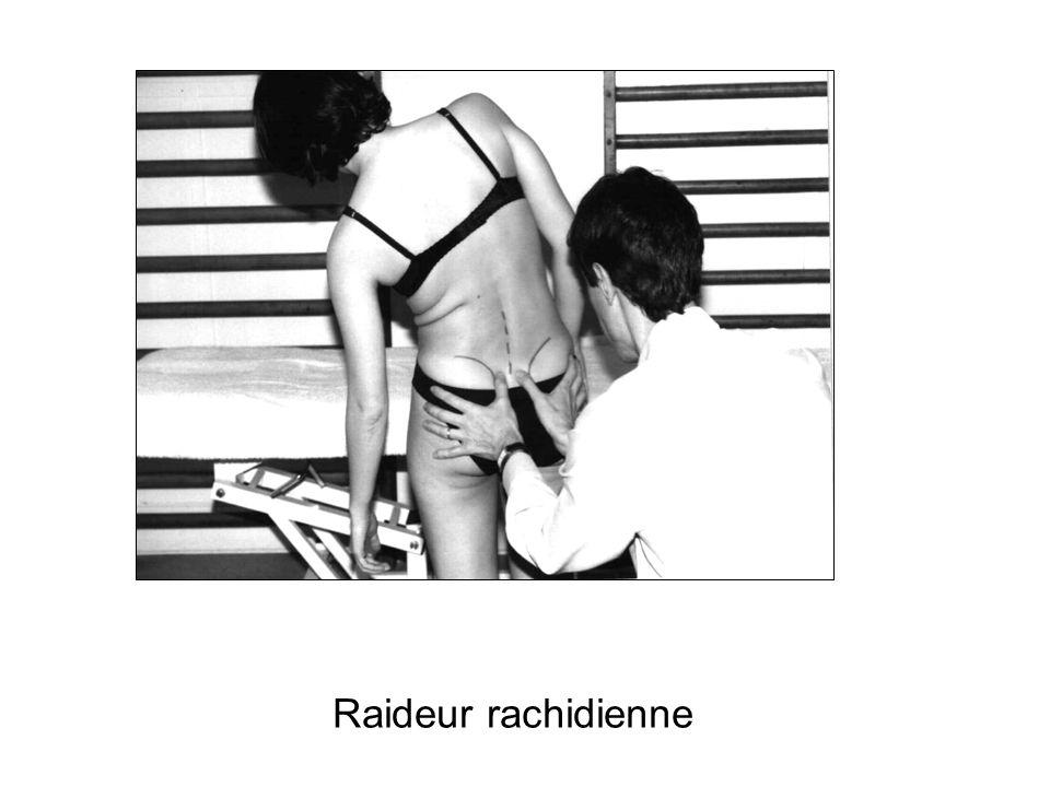 Raideur rachidienne