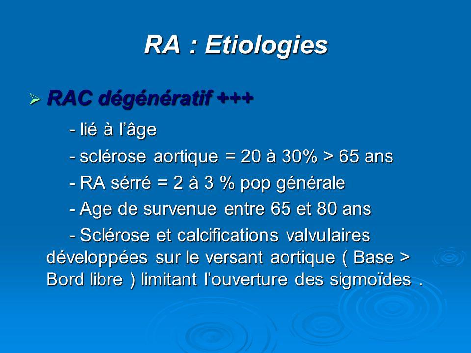 RA : Etiologies RAC dégénératif +++ - lié à l'âge