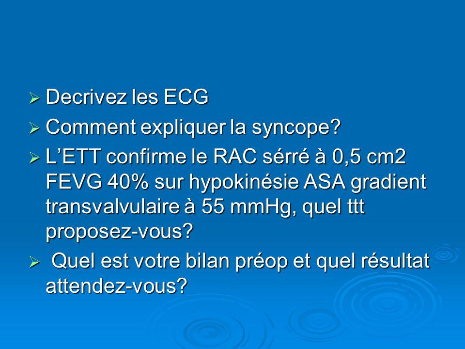 Decrivez les ECG Comment expliquer la syncope