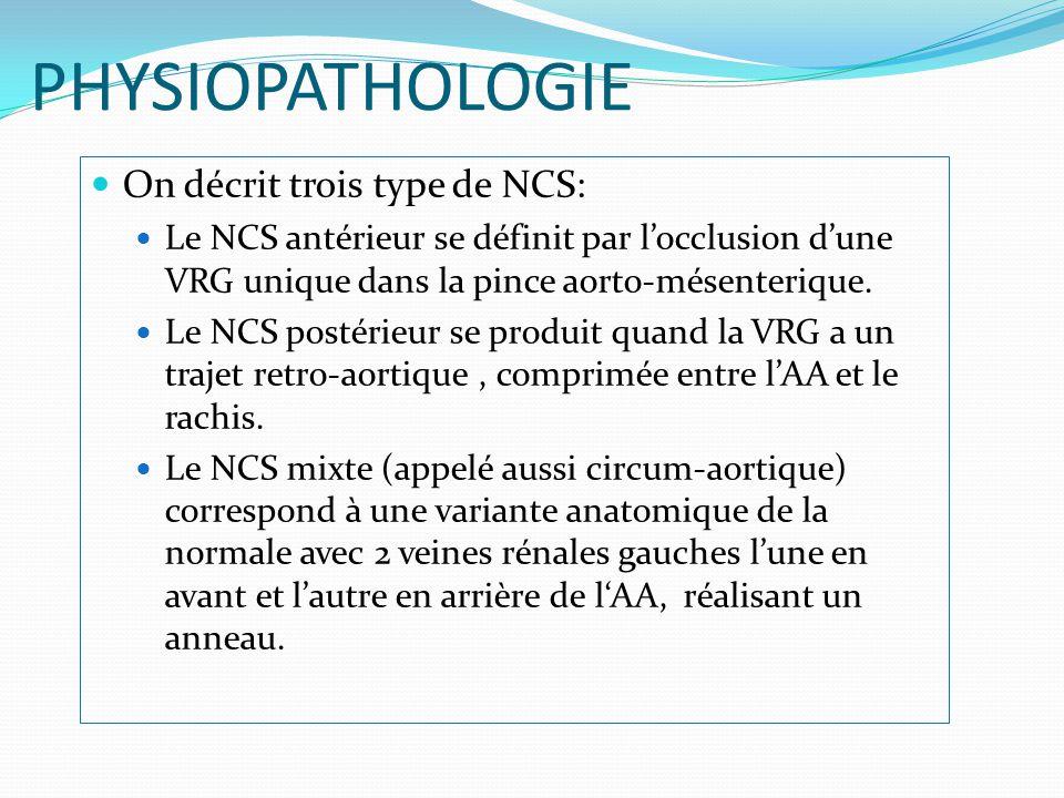 Apport de l angioscanner dans le diagnostic du syndrome de nutcracker ppt video online t l charger - Se couper les veines sans douleur ...