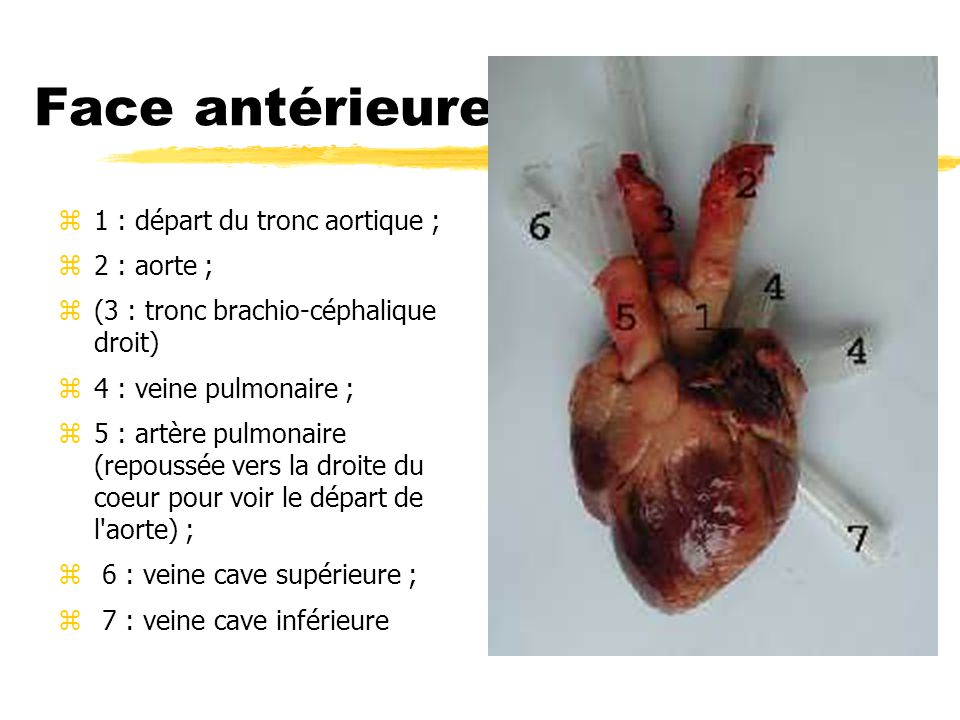 Face antérieure 1 : départ du tronc aortique ; 2 : aorte ;