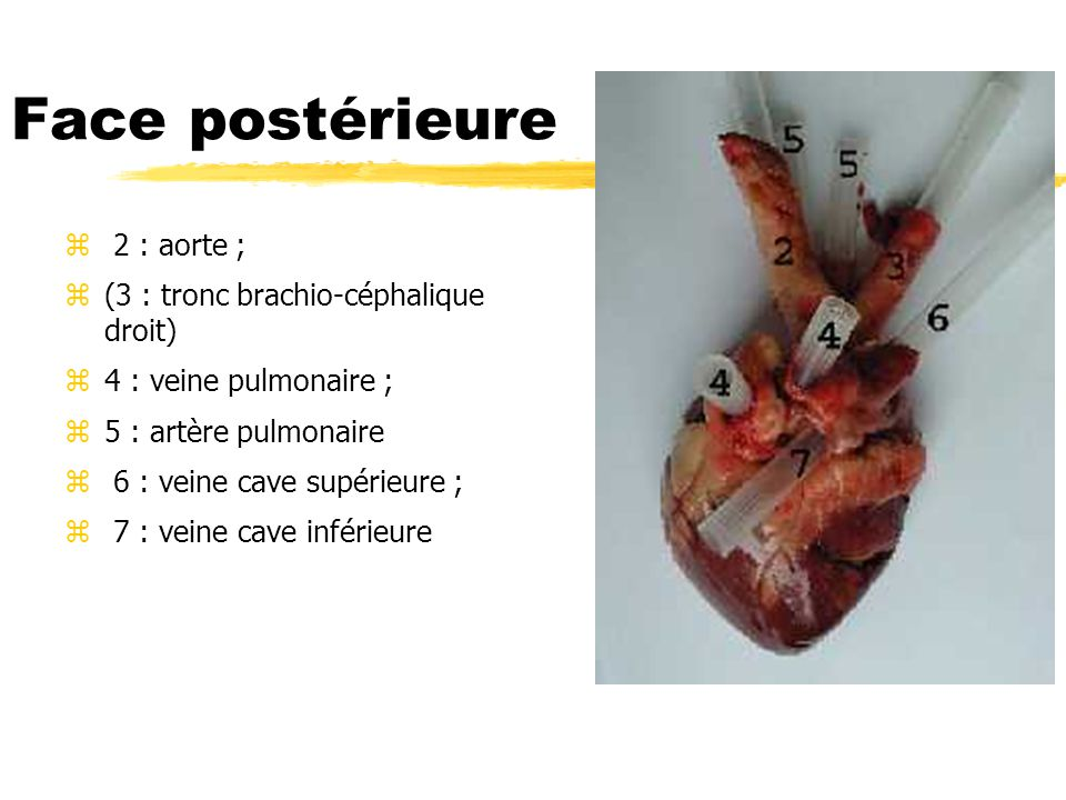 Face postérieure 2 : aorte ; (3 : tronc brachio-céphalique droit)