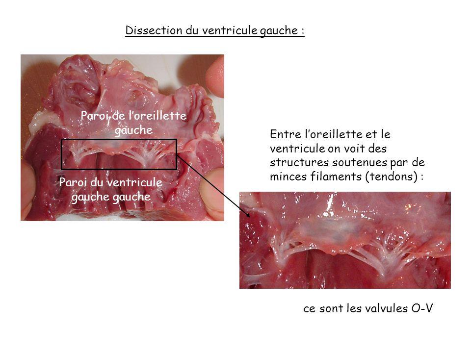 Dissection du ventricule gauche :