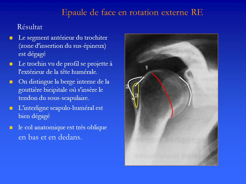 Epaule de face en rotation externe RE