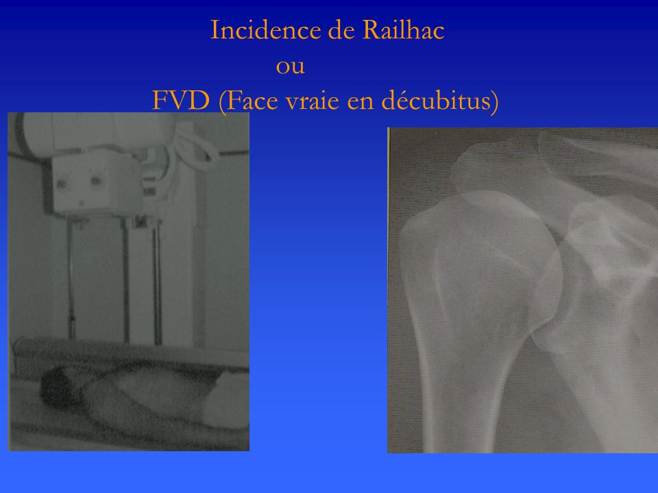 Incidence de Railhac ou FVD (Face vraie en décubitus)
