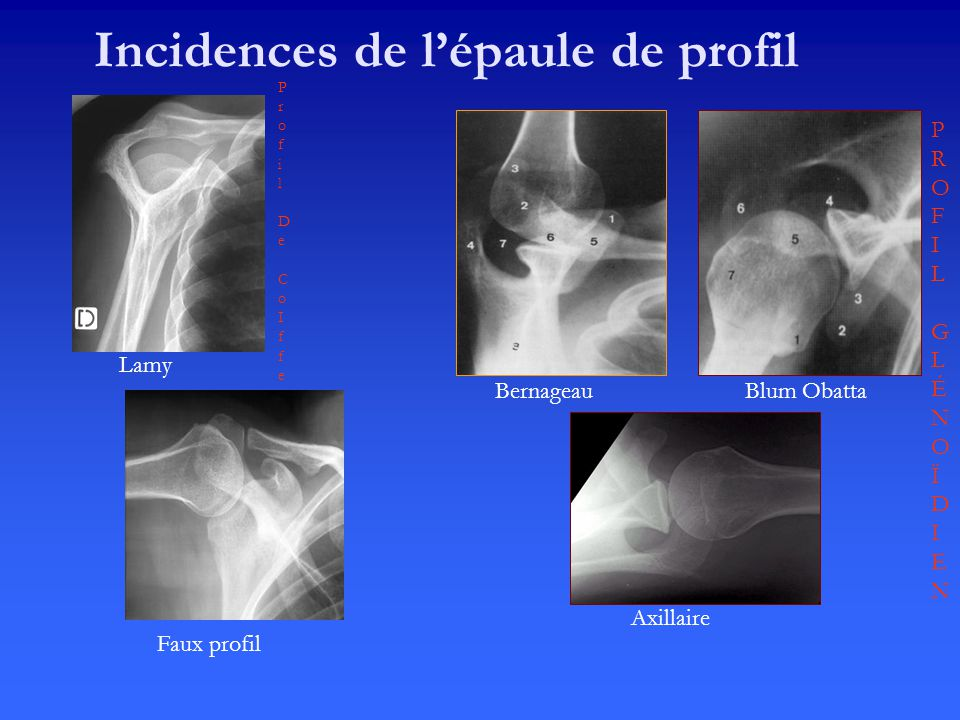 Incidences de l'épaule de profil