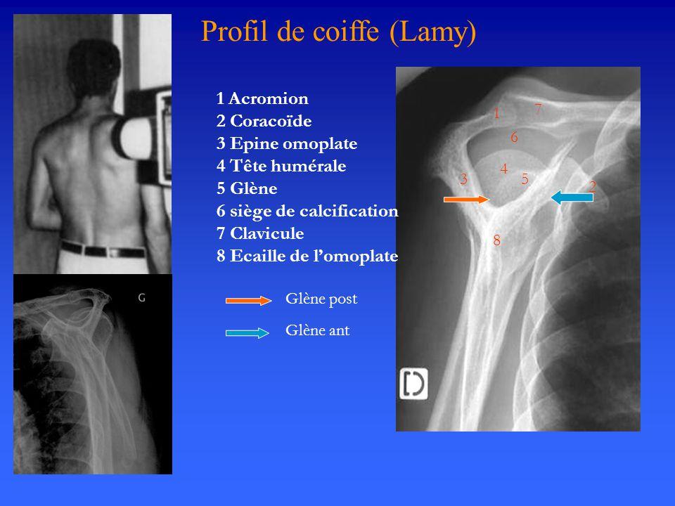 Profil de coiffe (Lamy)