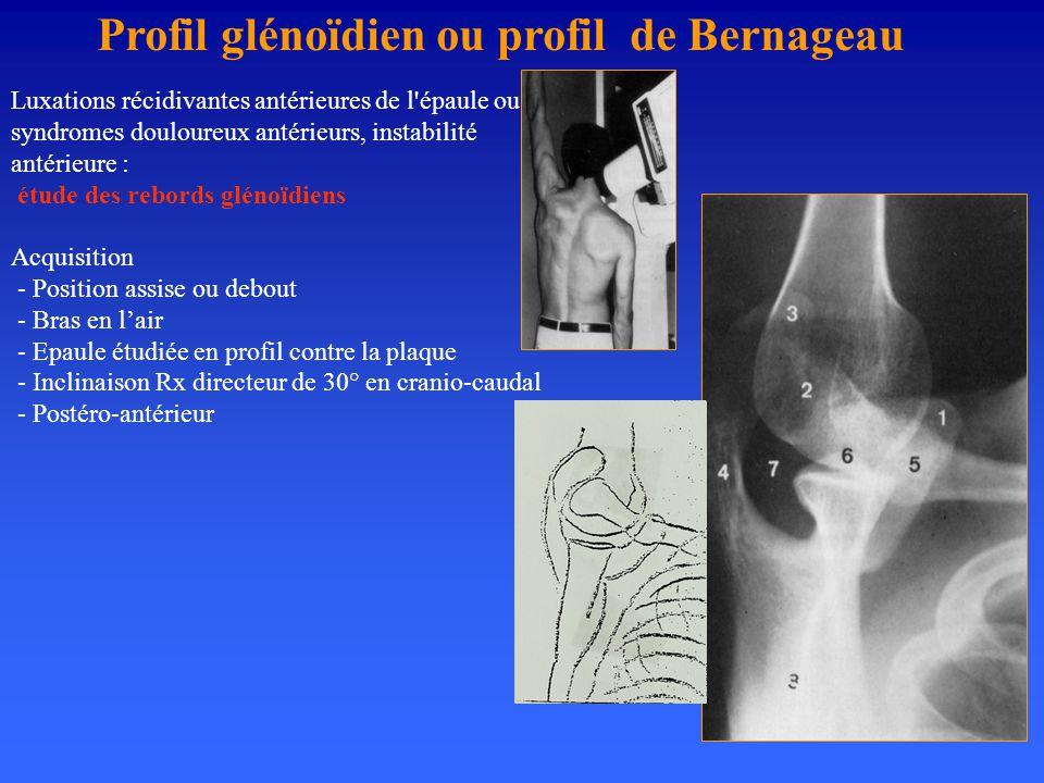 Profil glénoïdien ou profil de Bernageau