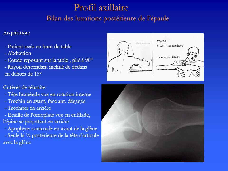 Profil axillaire Bilan des luxations postérieure de l'épaule