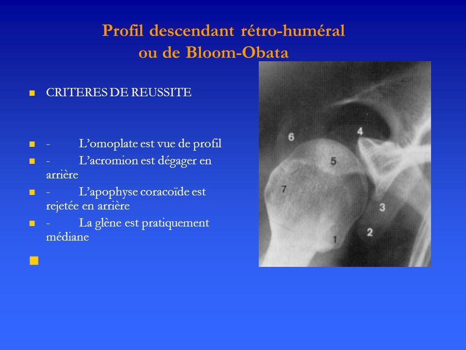 Profil descendant rétro-huméral ou de Bloom-Obata CRITERES DE REUSSITE
