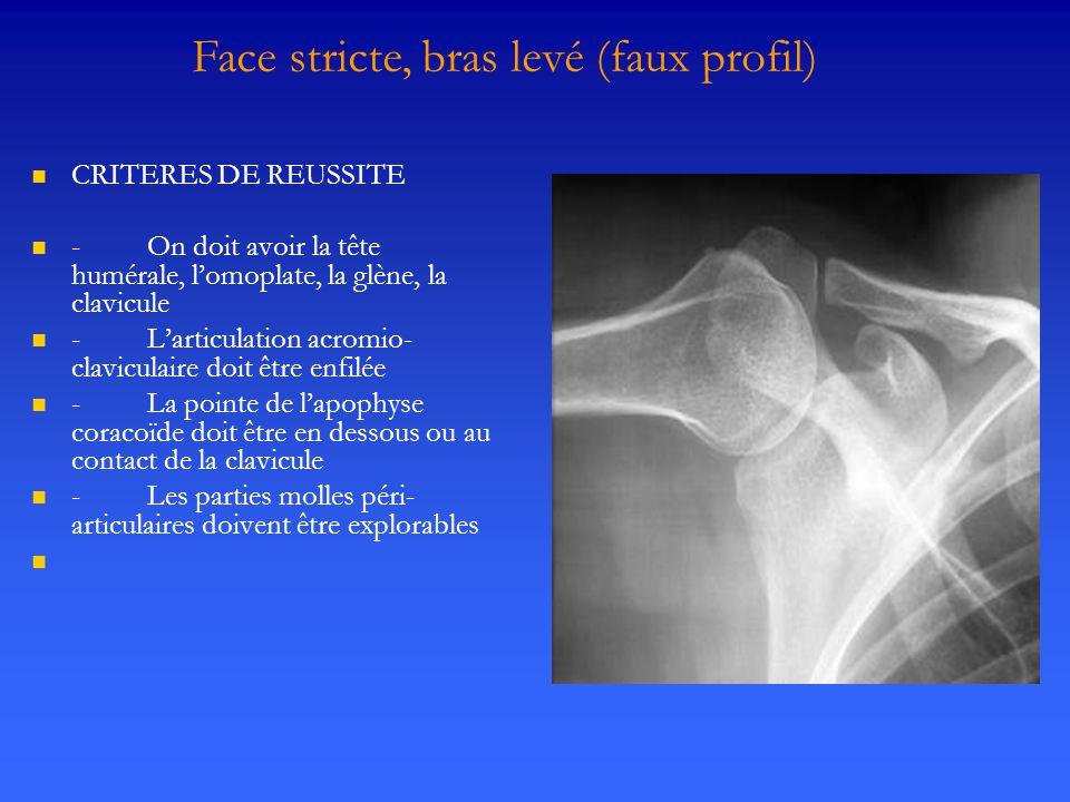 Face stricte, bras levé (faux profil)