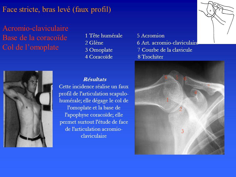 Face stricte, bras levé (faux profil) Acromio-claviculaire