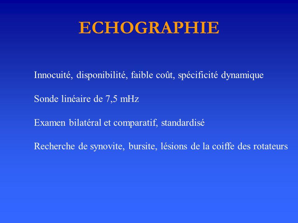 ECHOGRAPHIE Innocuité, disponibilité, faible coût, spécificité dynamique. Sonde linéaire de 7,5 mHz.