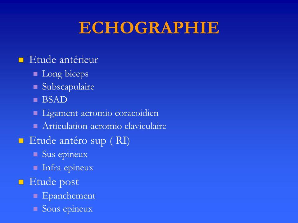 ECHOGRAPHIE Etude antérieur Etude antéro sup ( RI) Etude post