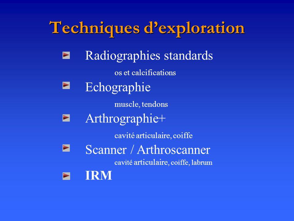 Techniques d'exploration
