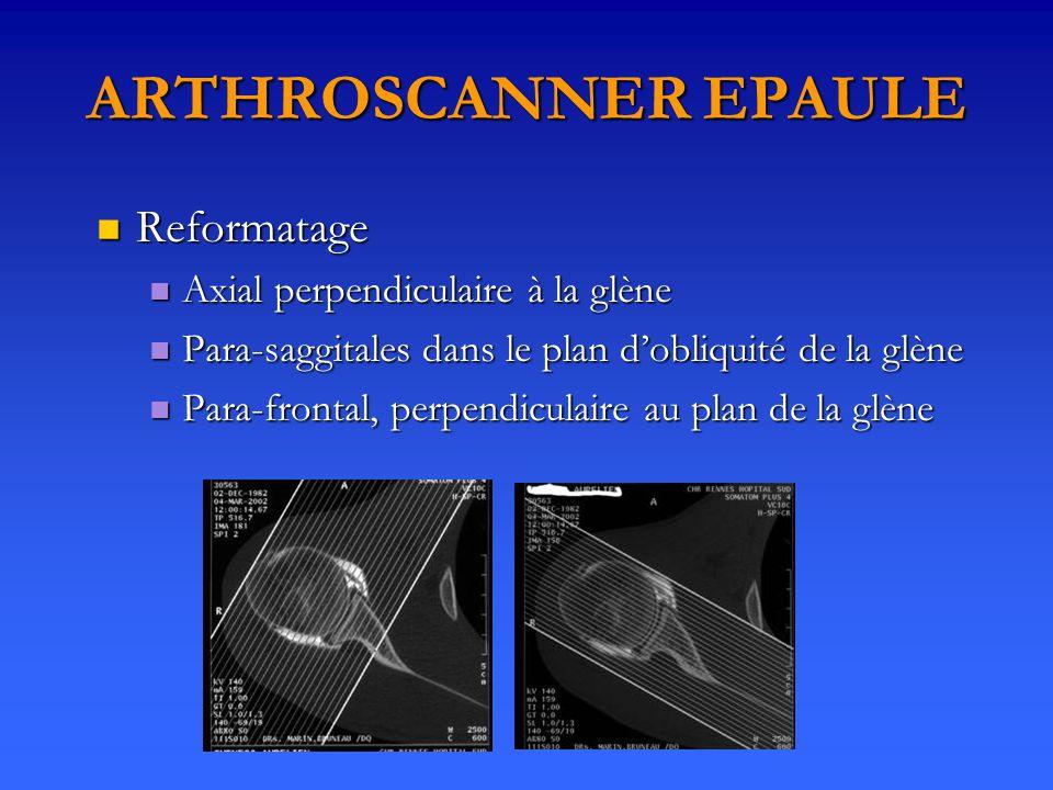 ARTHROSCANNER EPAULE Reformatage Axial perpendiculaire à la glène