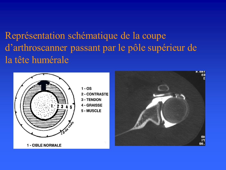 Représentation schématique de la coupe d'arthroscanner passant par le pôle supérieur de la tête humérale