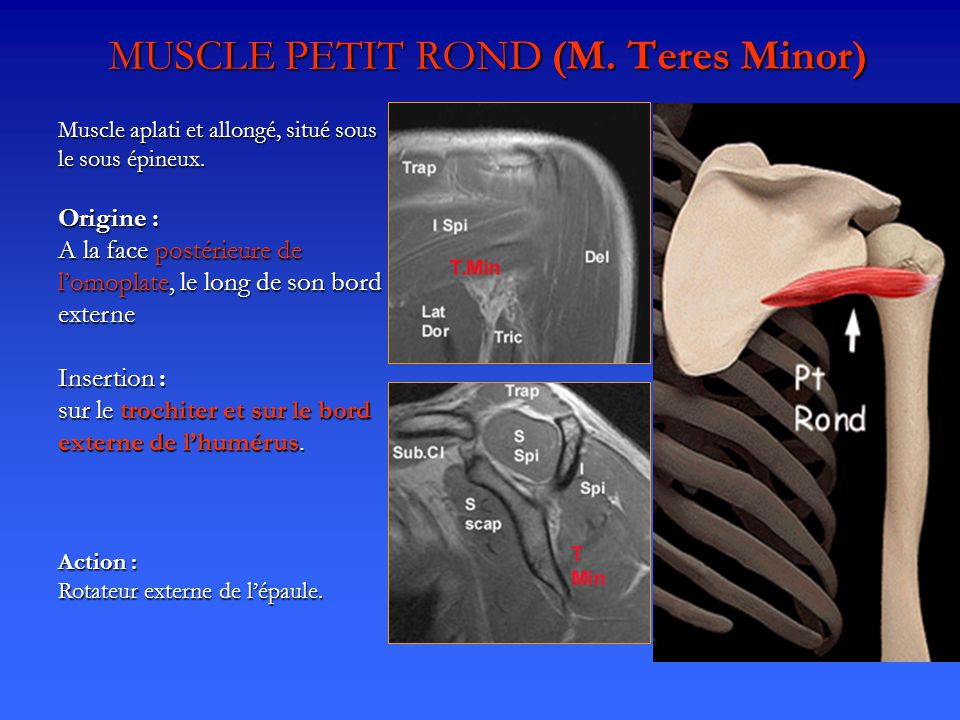 MUSCLE PETIT ROND (M. Teres Minor)