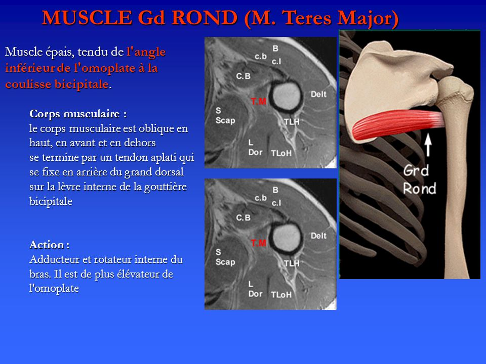 MUSCLE Gd ROND (M. Teres Major)