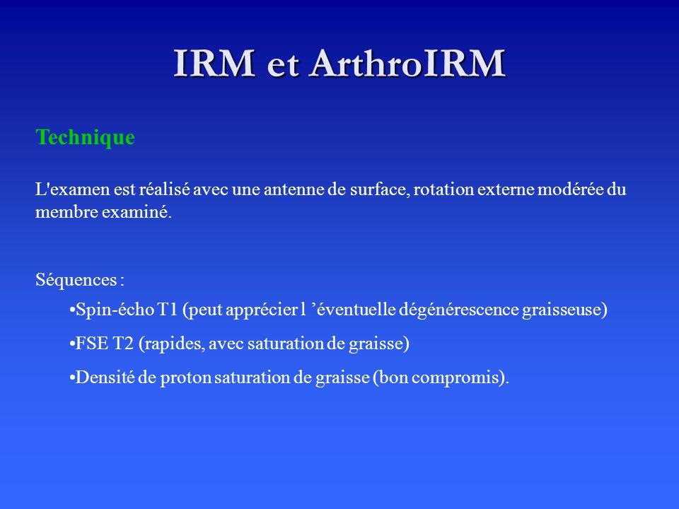 IRM et ArthroIRM Technique