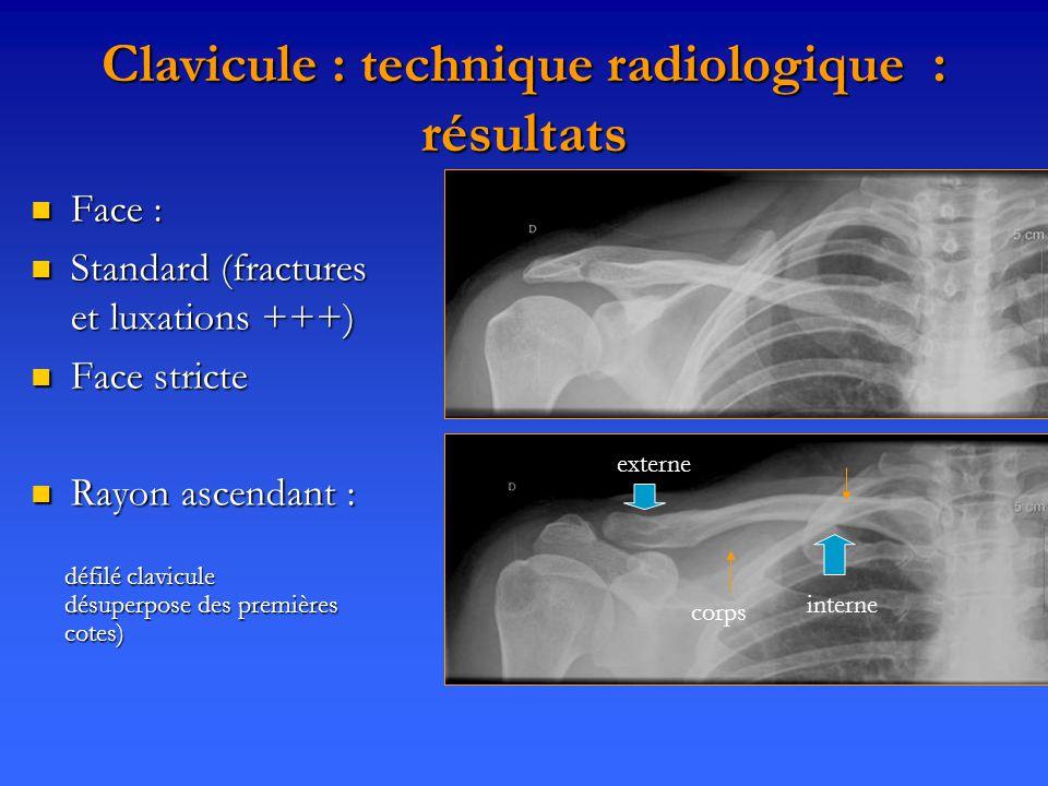 Clavicule : technique radiologique : résultats